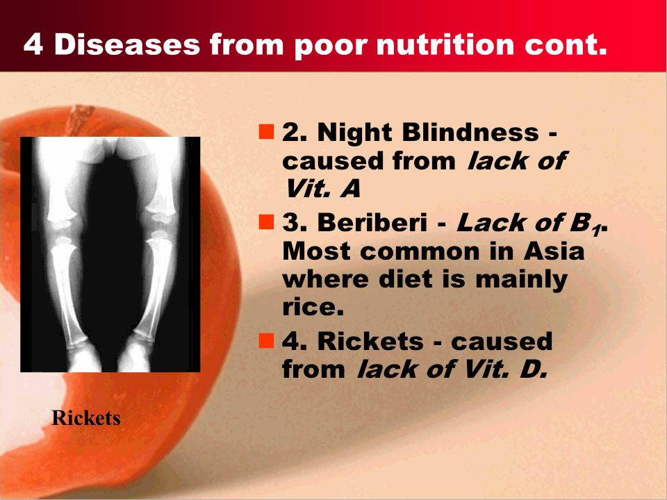 4 Diseases from poor nutrition cont.