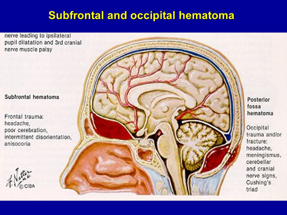 Subfrontal and occipital hematoma