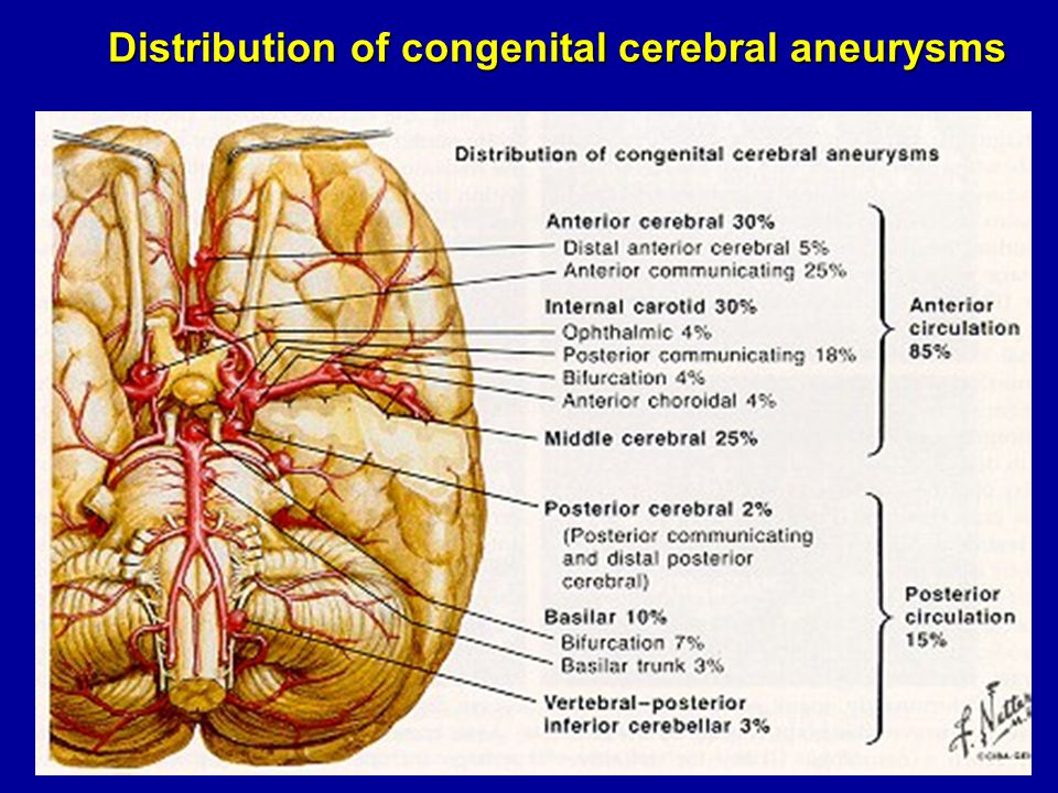 Distribution of congenital cerebral aneurysms