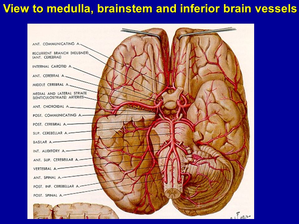 View to medulla, brainstem and inferior brain vessels