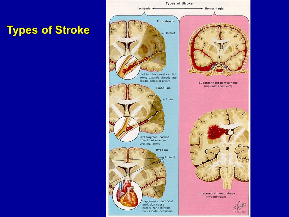 Types of Stroke
