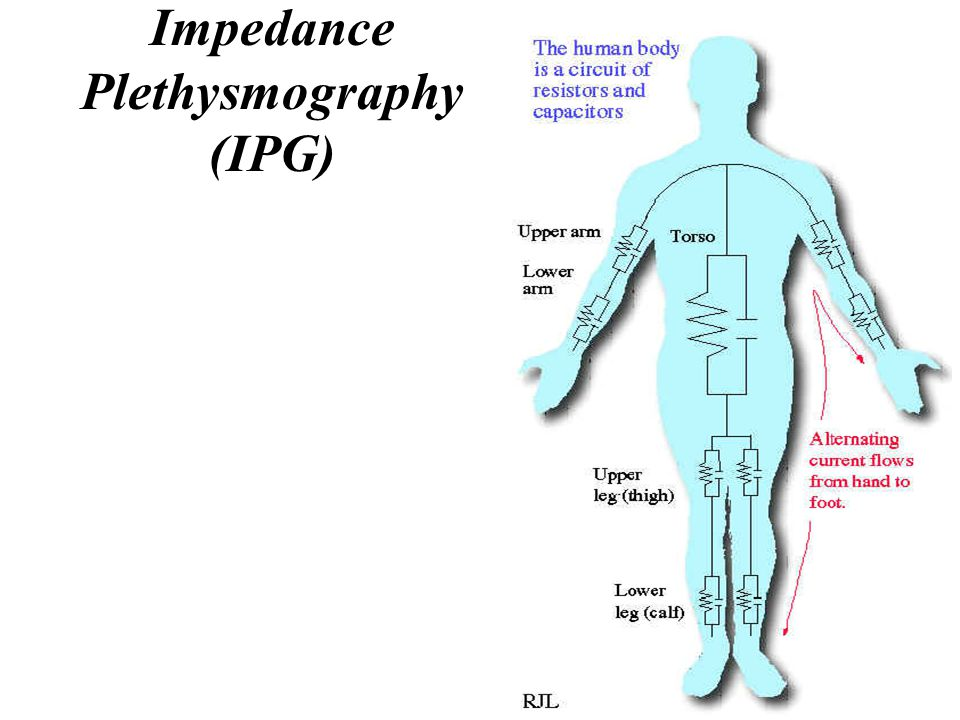 Impedance Plethysmography (IPG)