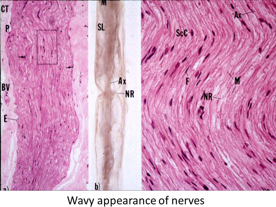 Wavy appearance of nerves