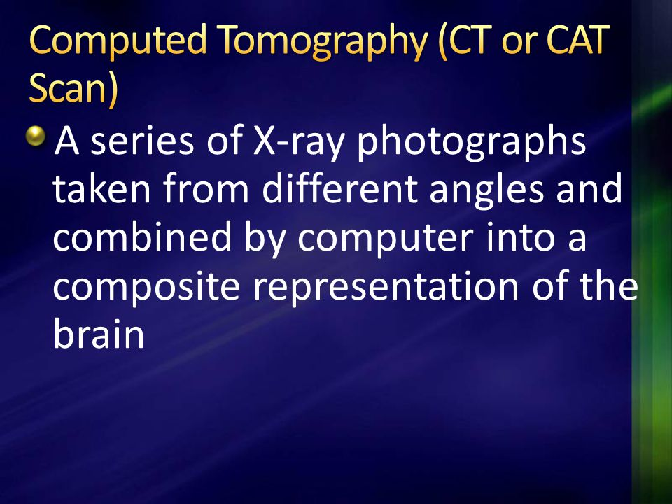 Computed Tomography (CT or CAT Scan)
