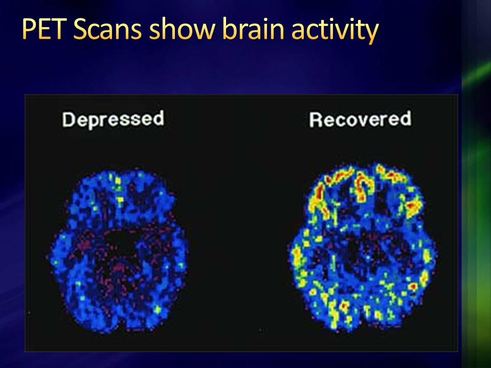 PET Scans show brain activity