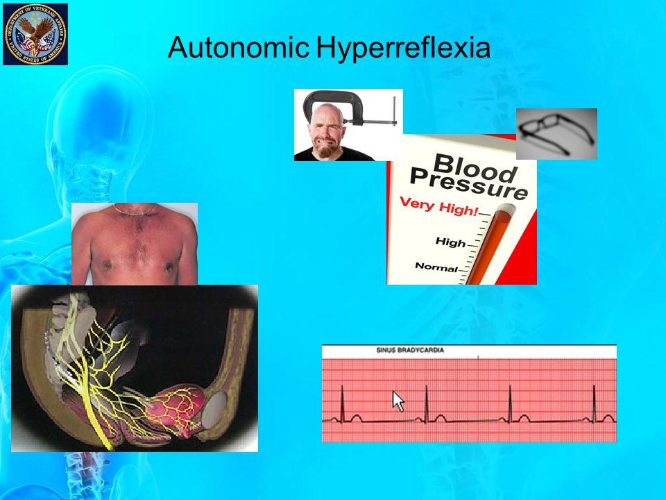 Autonomic Hyperreflexia