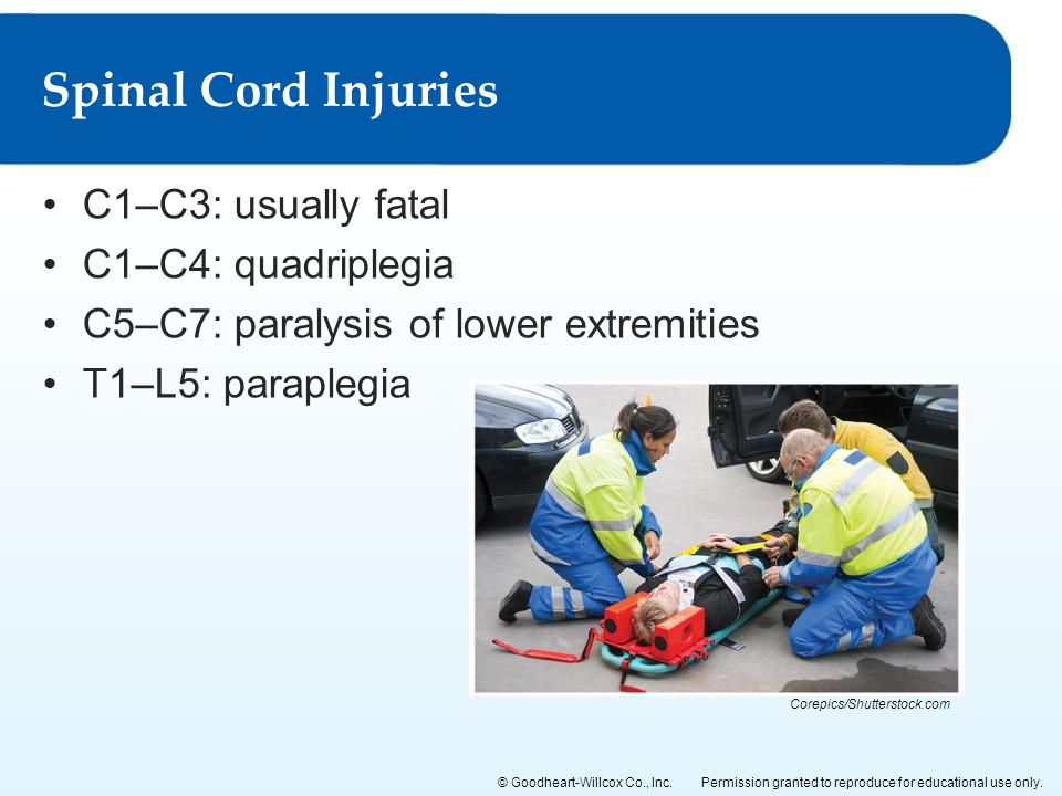 Spinal Cord Injuries C1–C3: usually fatal C1–C4: quadriplegia