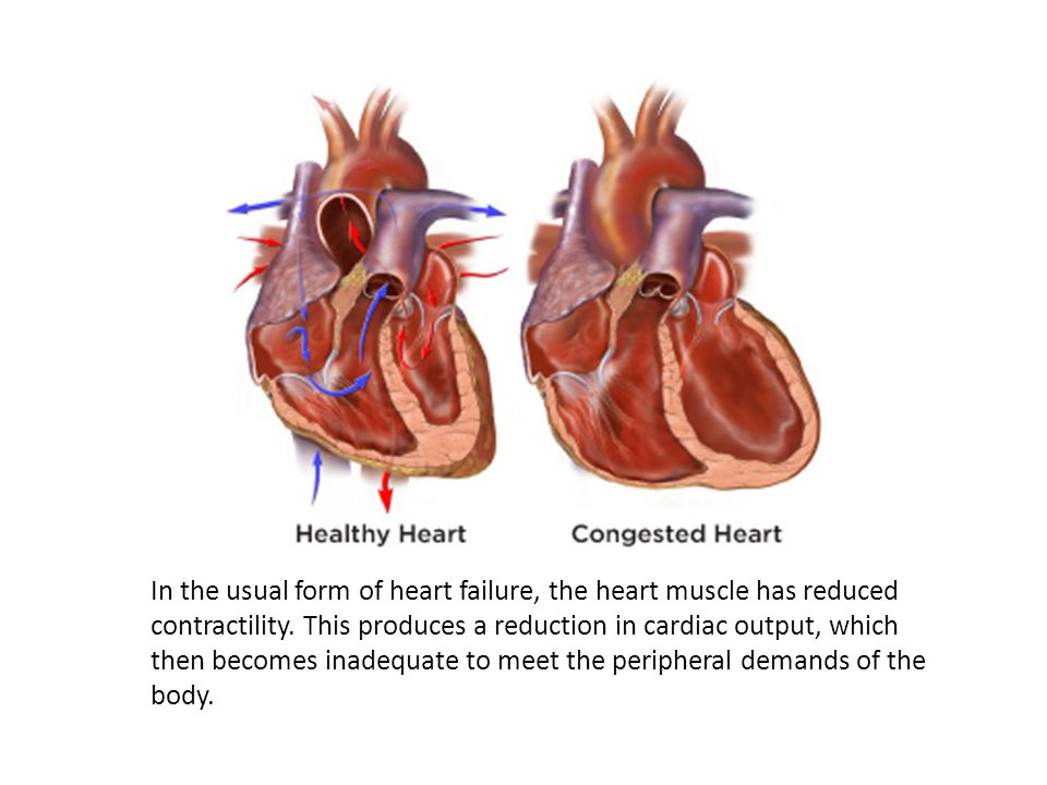 In the usual form of heart failure, the heart muscle has reduced contractility.