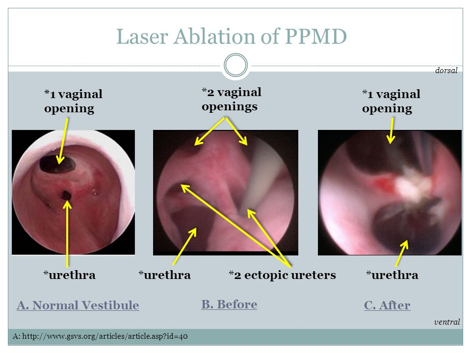 Laser Ablation of PPMD *1 vaginal opening *2 vaginal openings
