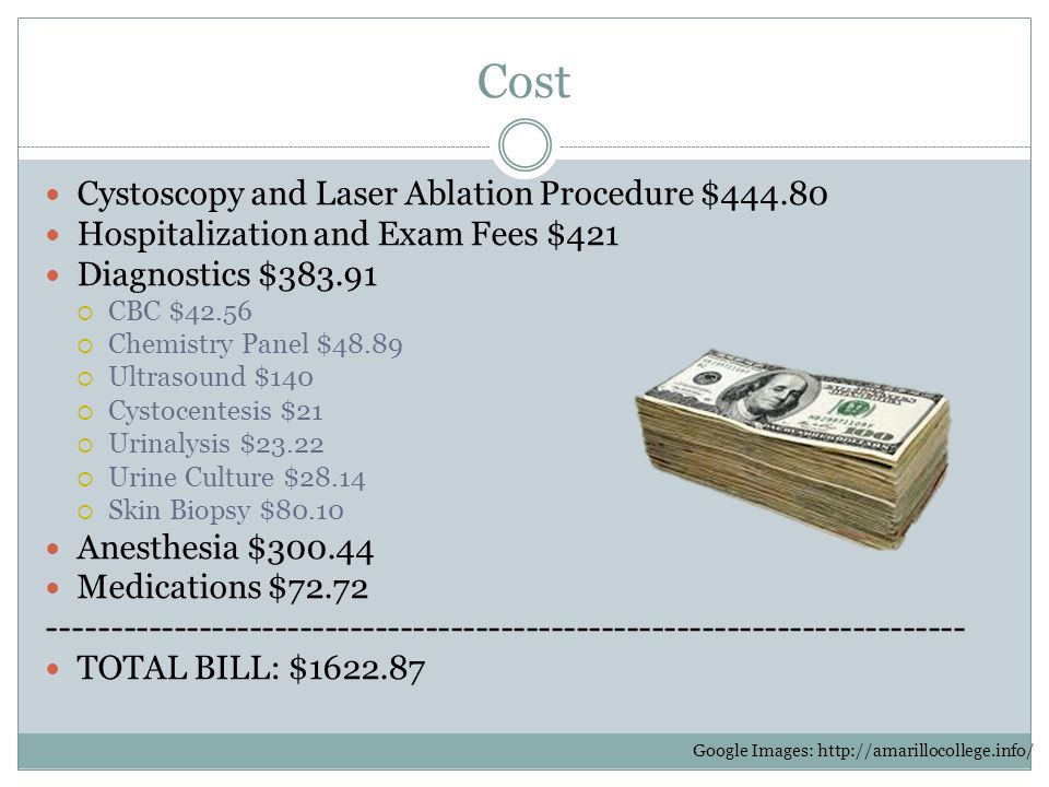 Cost Cystoscopy and Laser Ablation Procedure $444.80