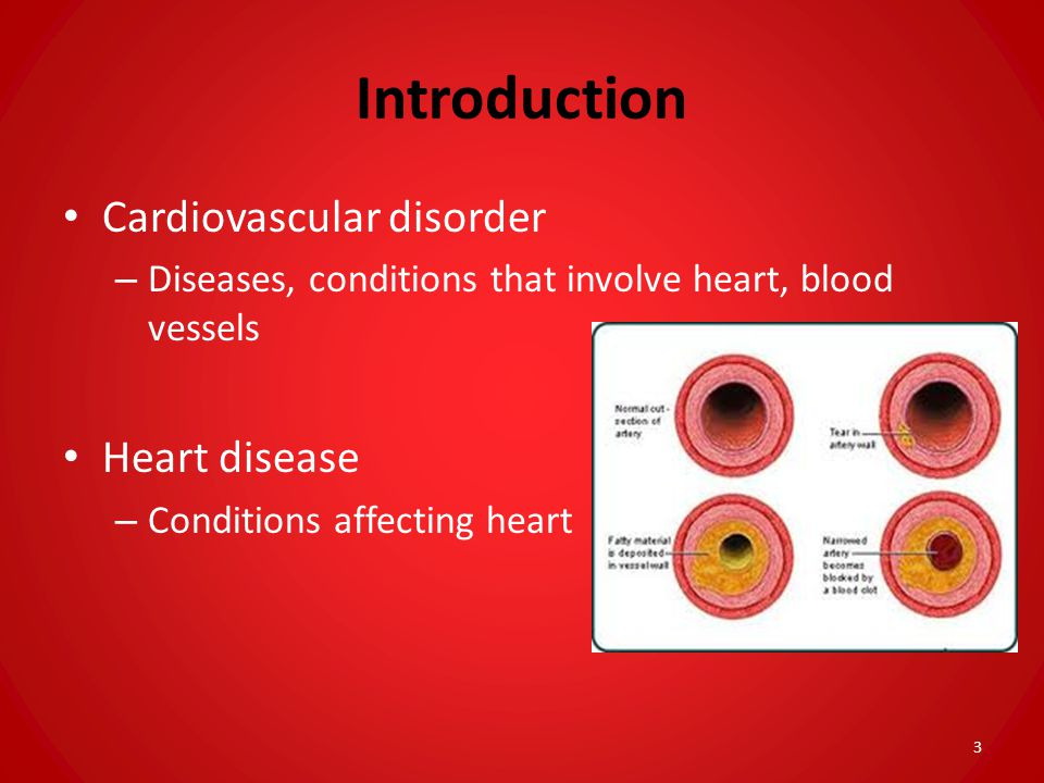 Introduction Cardiovascular disorder Heart disease