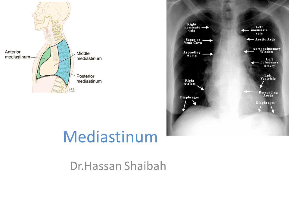 Mediastinum Dr.Hassan Shaibah