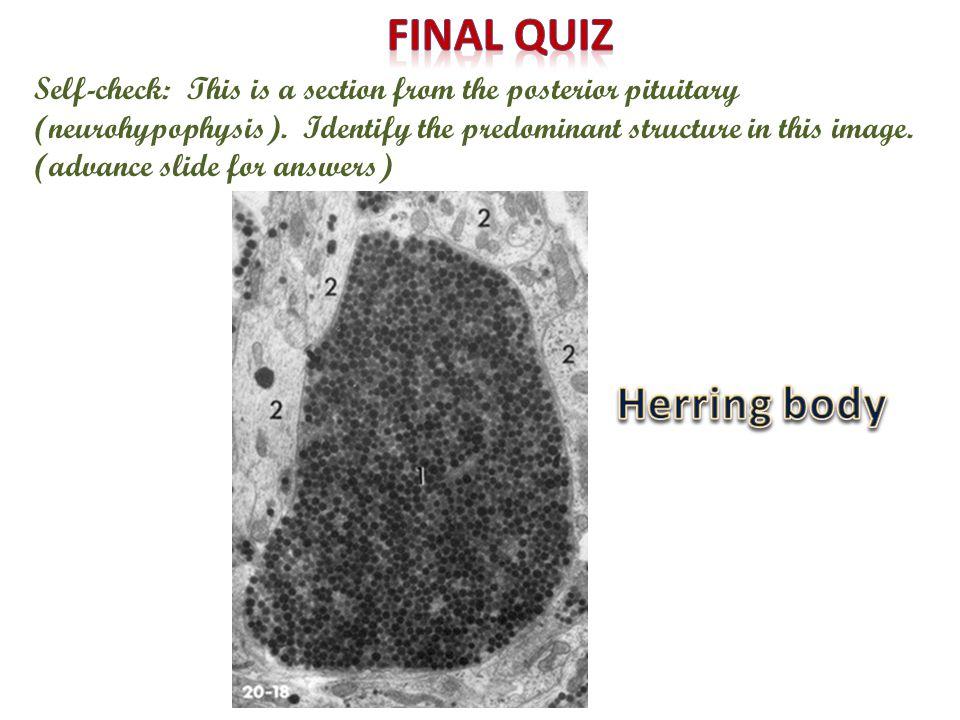 Final quiz Herring body