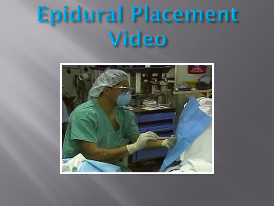 Epidural Placement Video