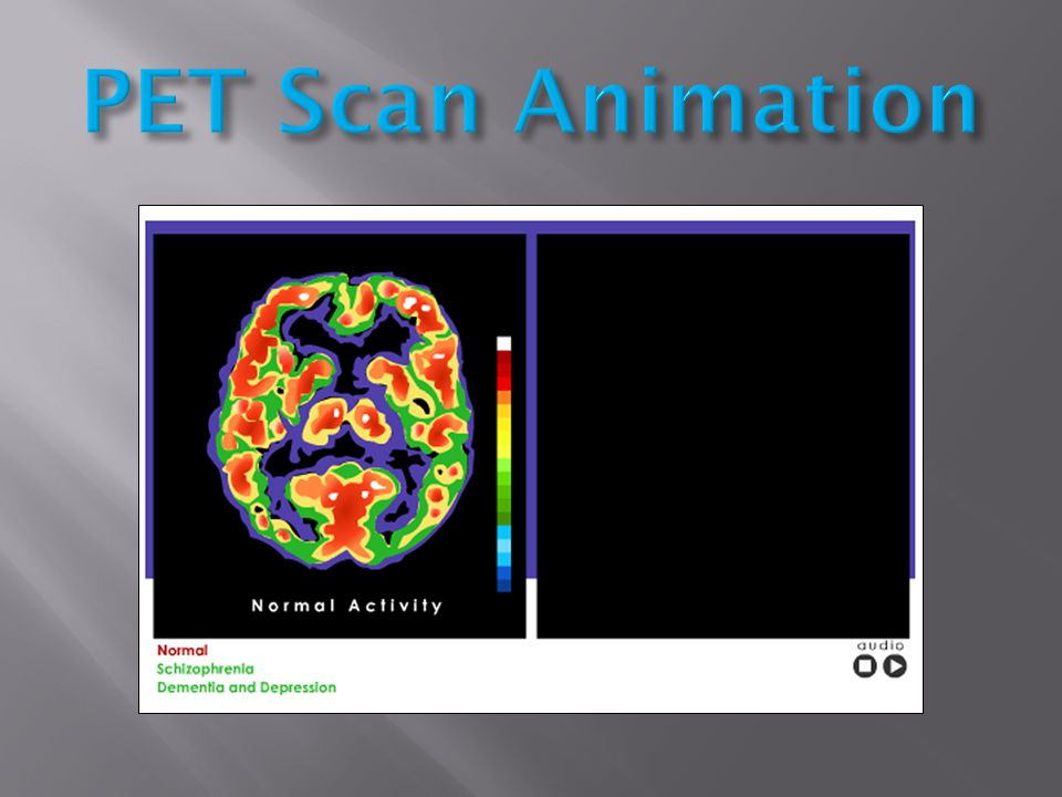 PET Scan Animation