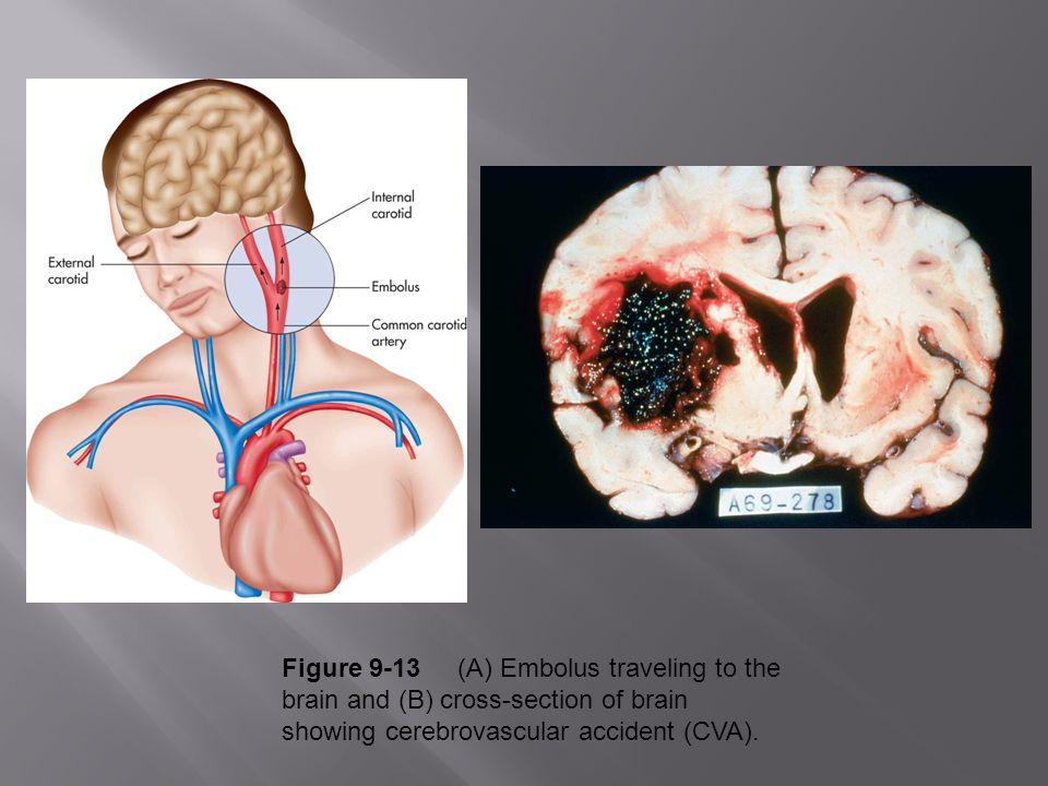 Figure 9-13 (A) Embolus traveling to the brain and (B) cross-section of brain showing cerebrovascular accident (CVA).