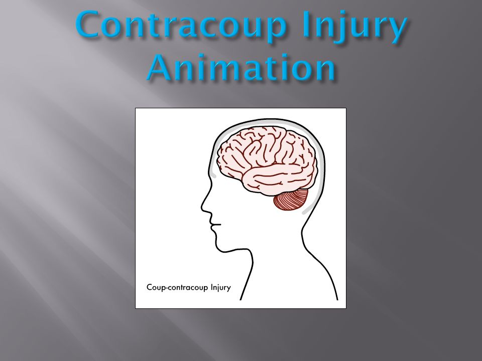 Contracoup Injury Animation