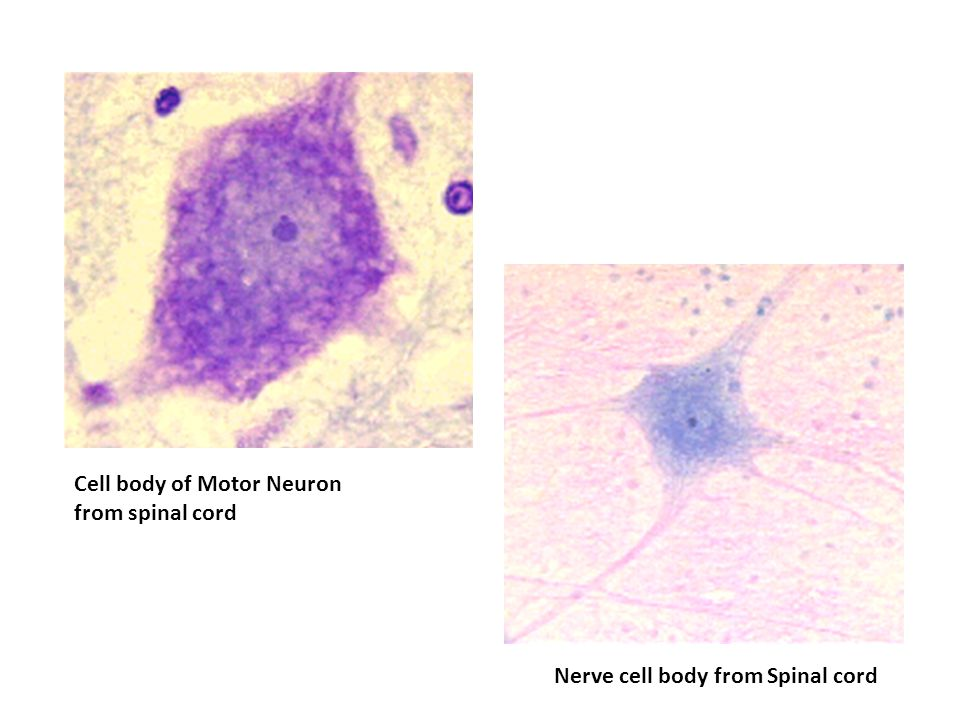 Cell body of Motor Neuron from spinal cord