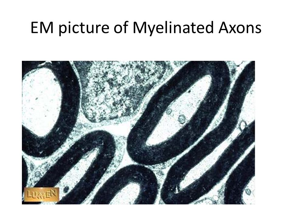 EM picture of Myelinated Axons