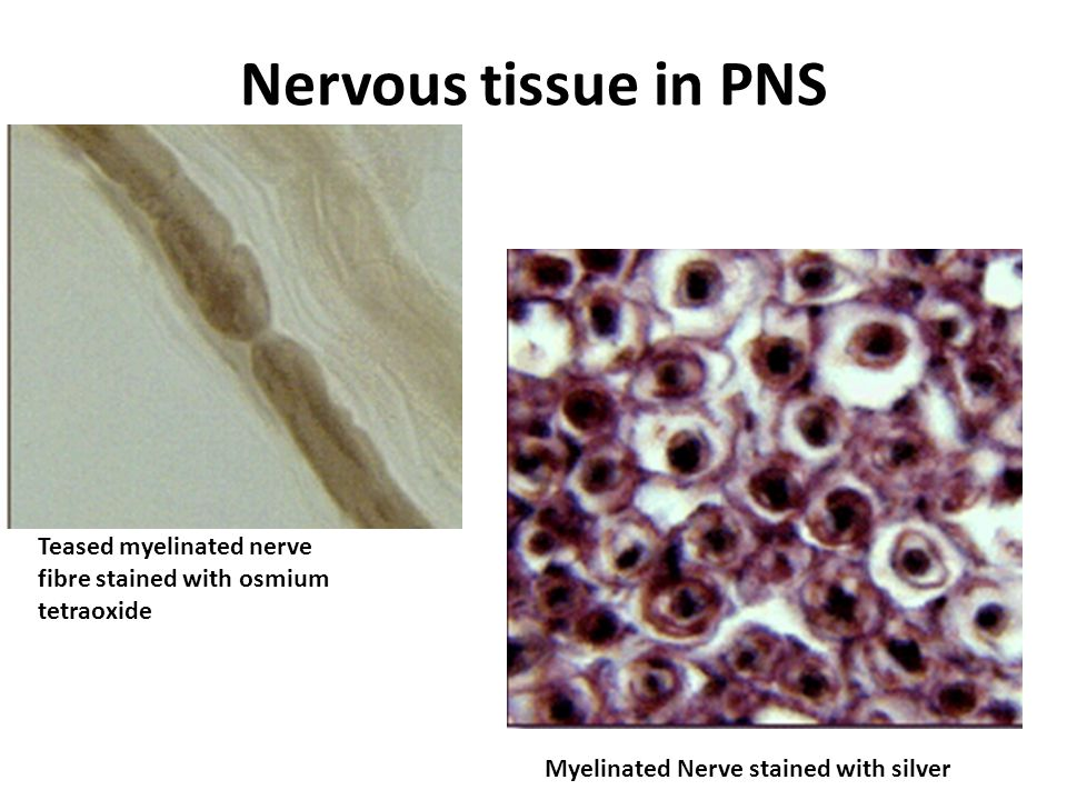 Nervous tissue in PNS Teased myelinated nerve fibre stained with osmium tetraoxide.