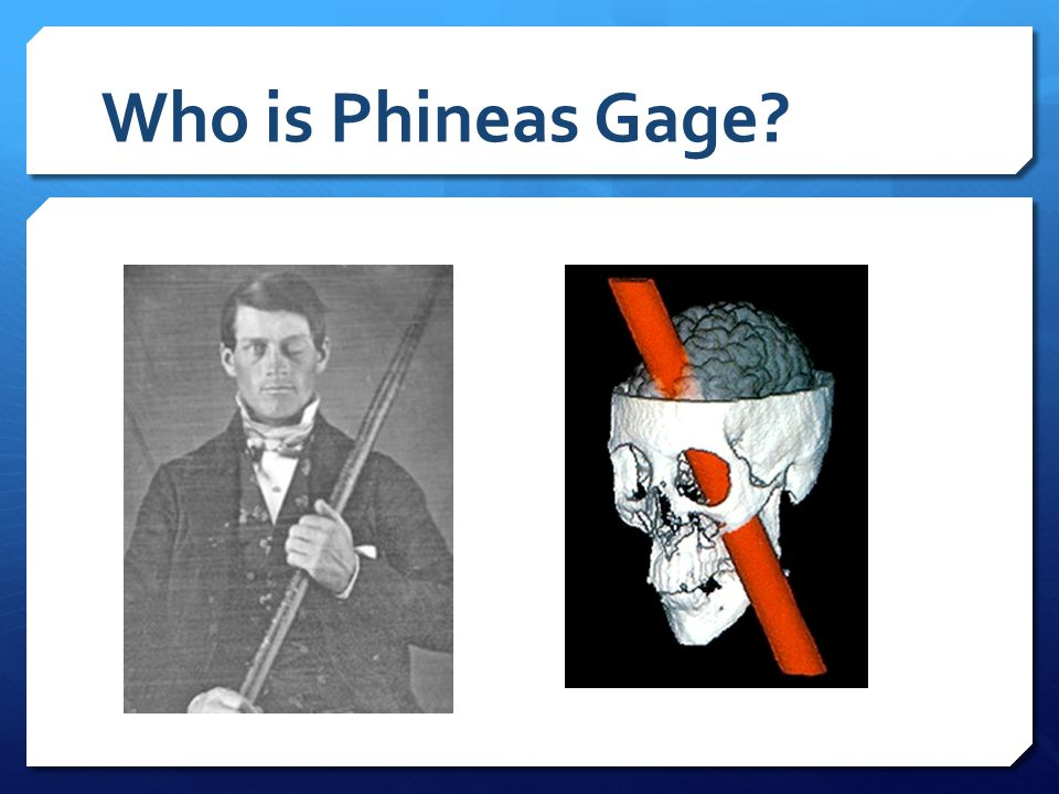 Who is Phineas Gage