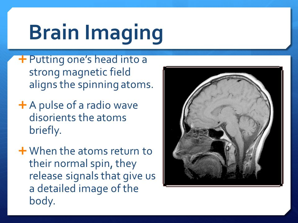 Brain Imaging Putting one's head into a strong magnetic field aligns the spinning atoms. A pulse of a radio wave disorients the atoms briefly.