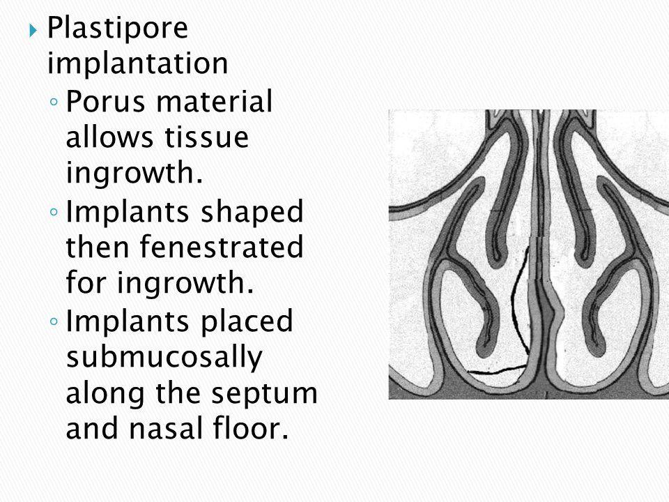 Plastipore implantation
