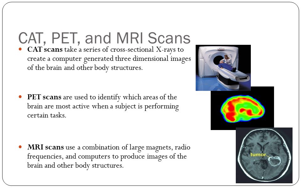 CAT, PET, and MRI Scans