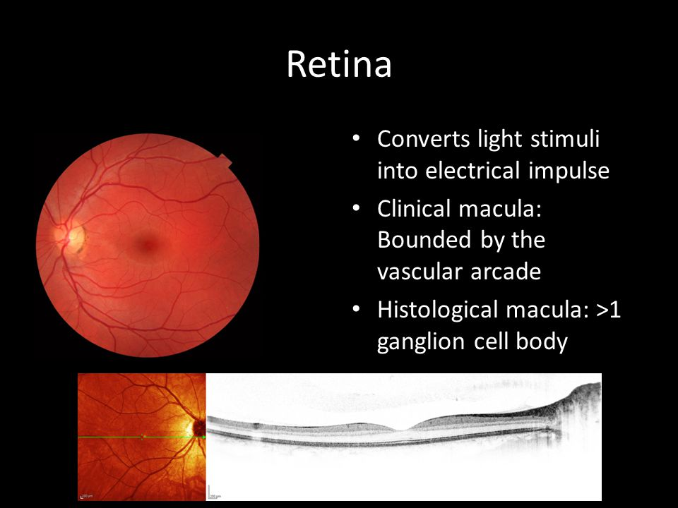 Retina Converts light stimuli into electrical impulse