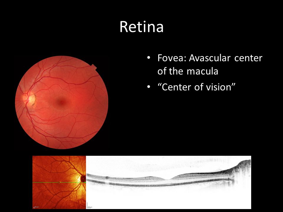Retina Fovea: Avascular center of the macula Center of vision