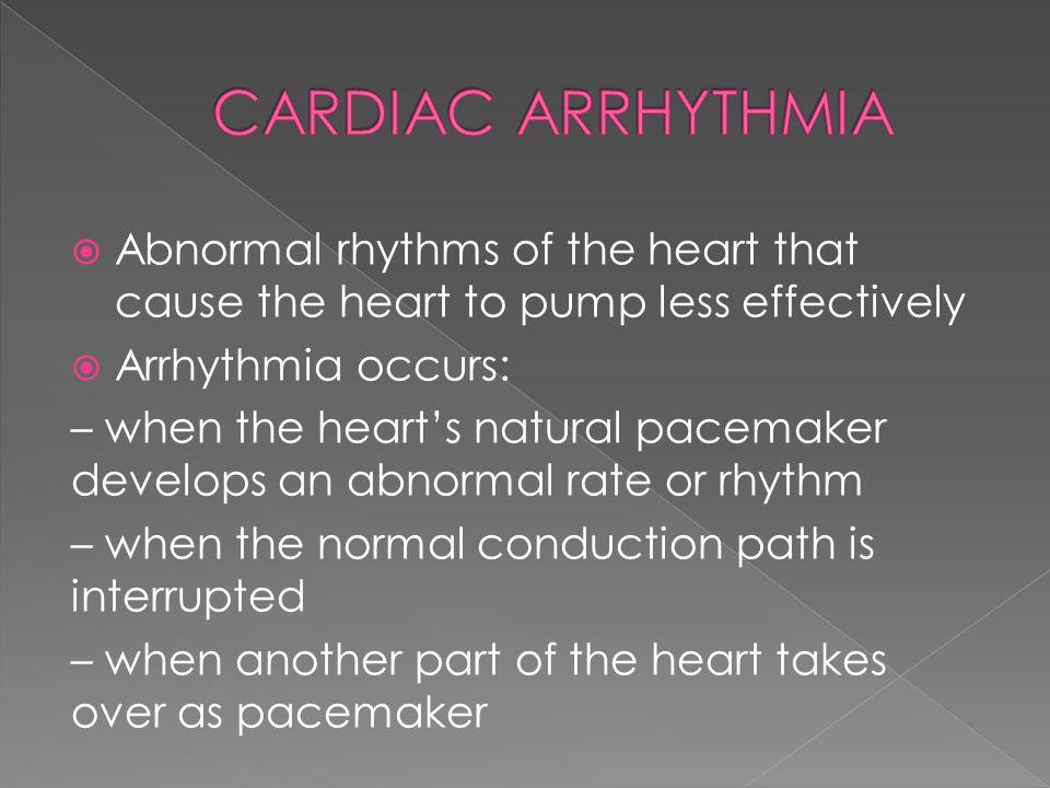 Cardiac Arrhythmia Abnormal rhythms of the heart that cause the heart to pump less effectively. Arrhythmia occurs: