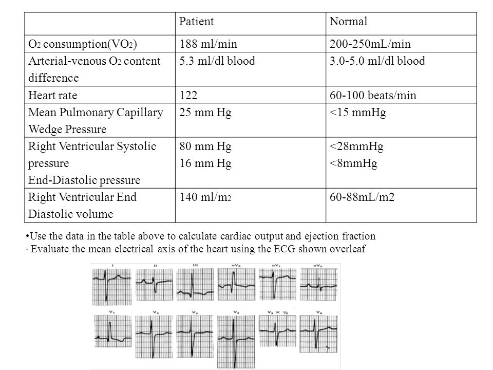Arterial-venous O2 content difference 5.3 ml/dl blood