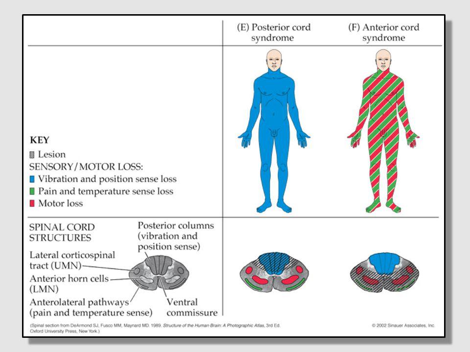 Pain, temp loss (at and below lesion)