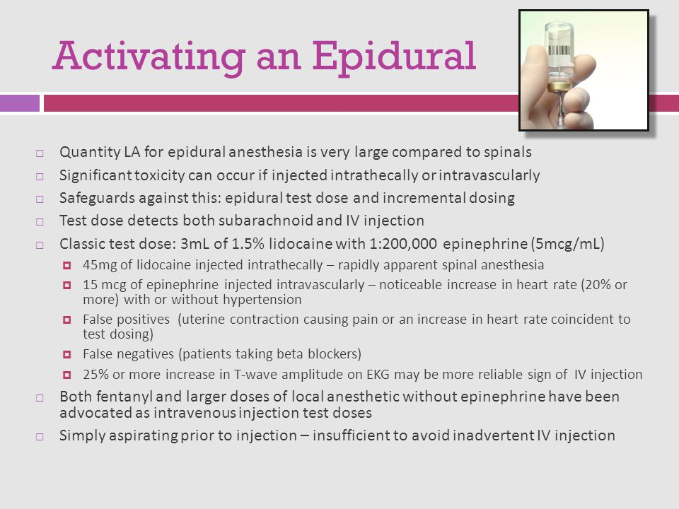 Activating an Epidural