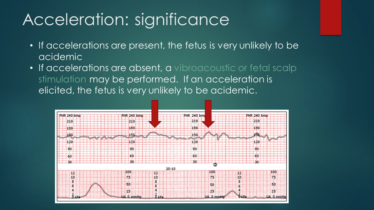 Acceleration: significance