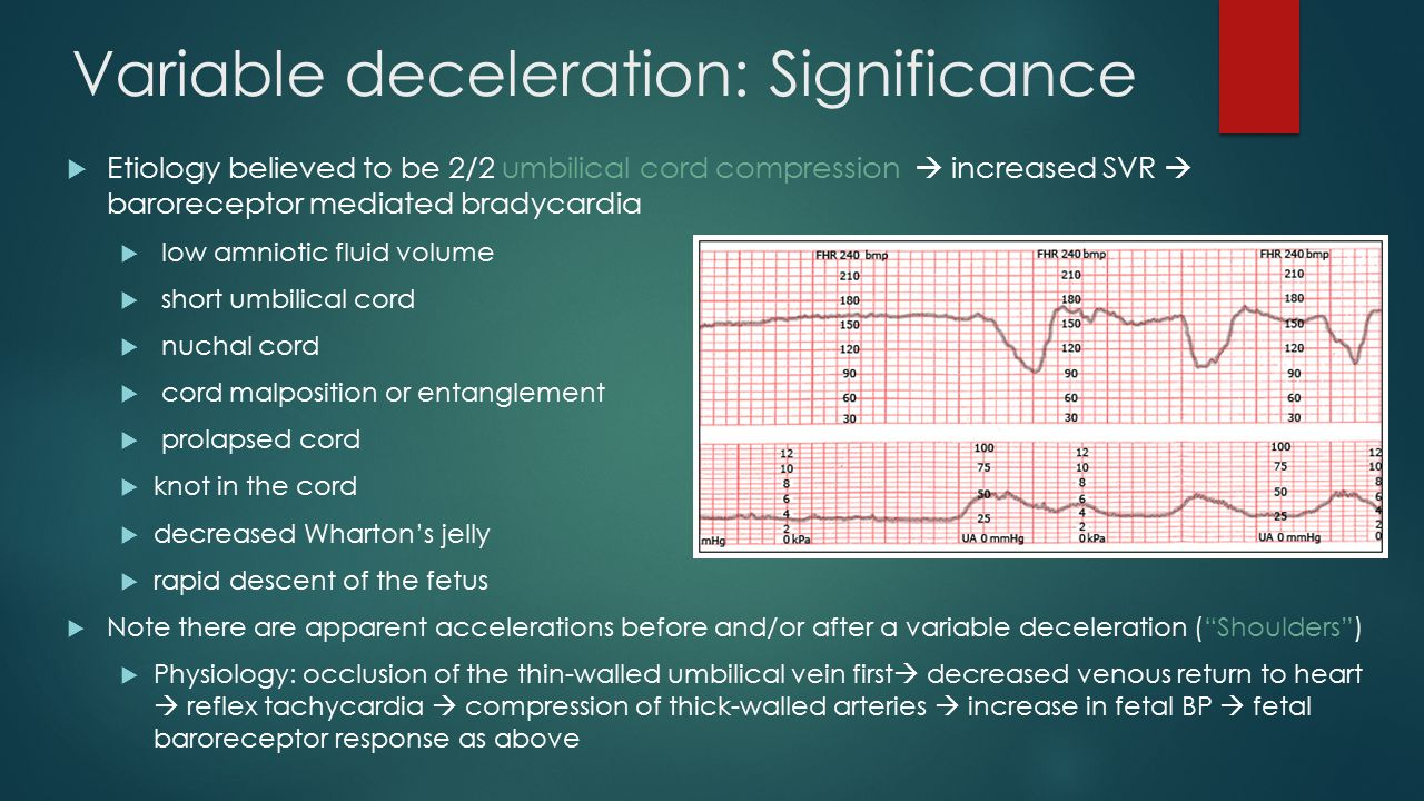 Variable deceleration: Significance