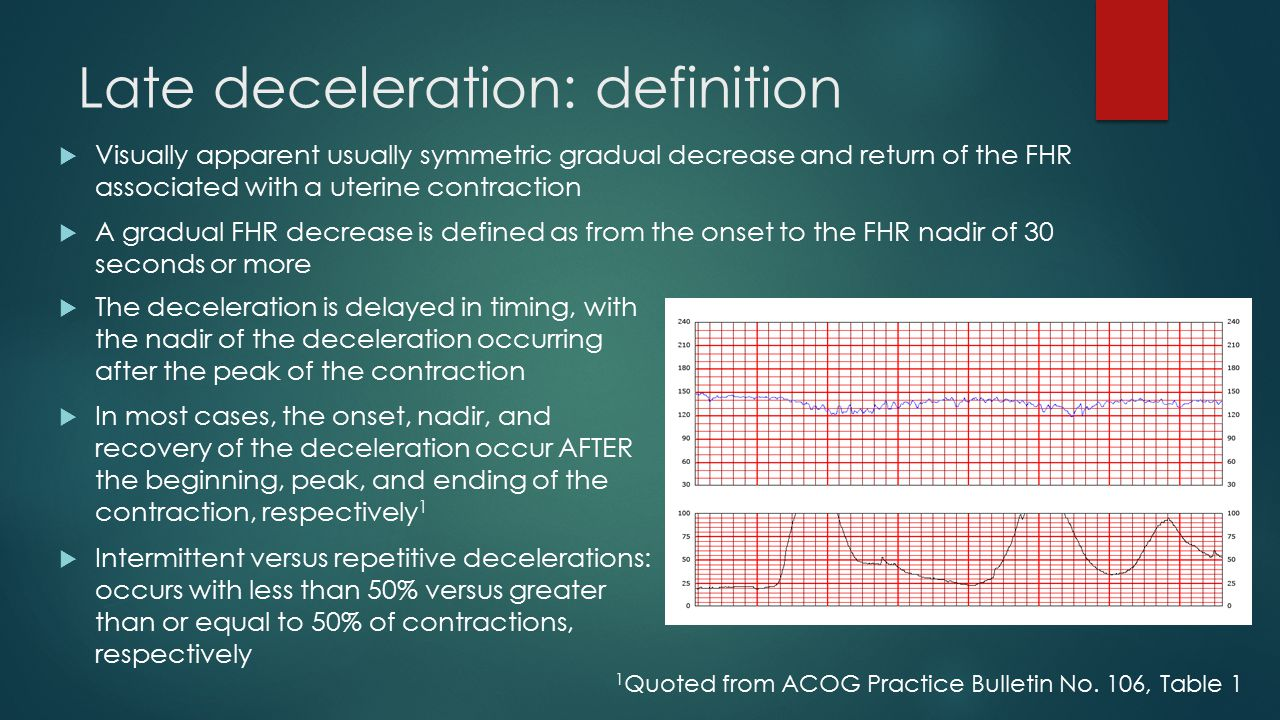 Late deceleration: definition
