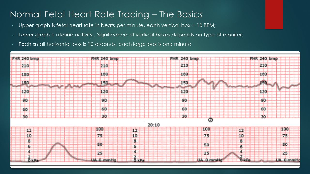 Normal Fetal Heart Rate Tracing – The Basics