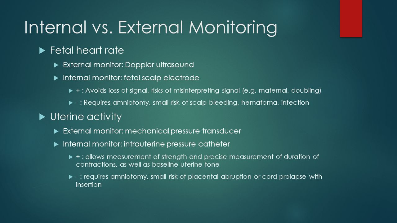 Internal vs. External Monitoring