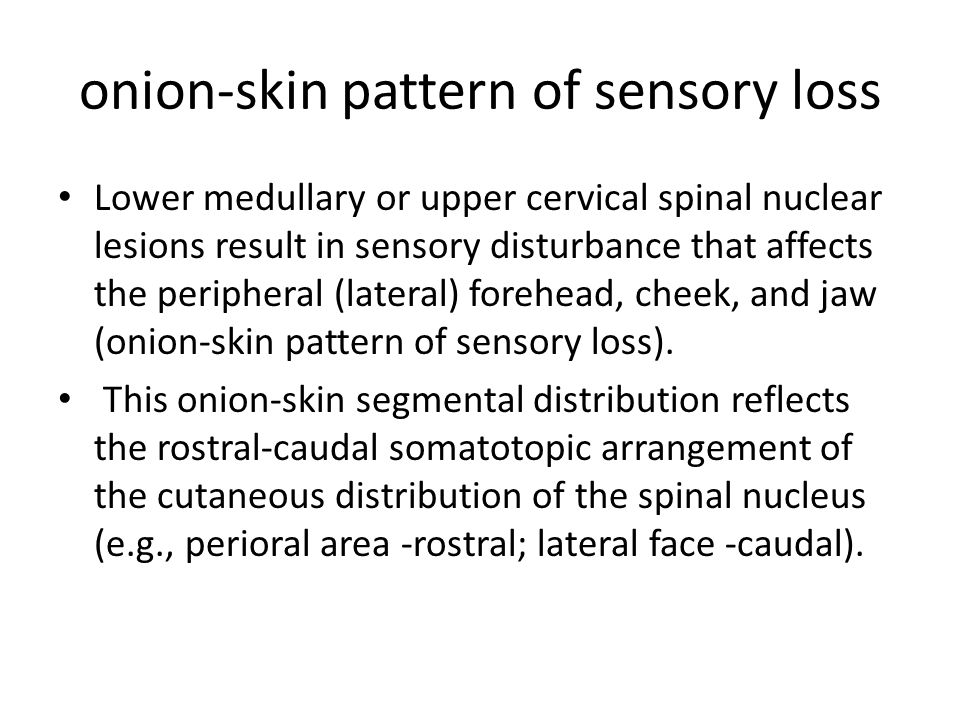 onion-skin pattern of sensory loss