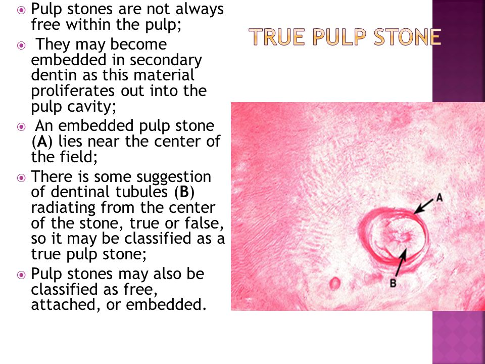 True Pulp Stone Pulp stones are not always free within the pulp;