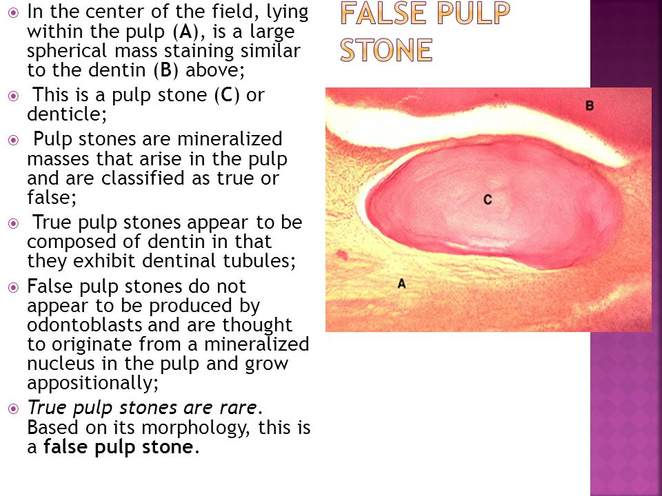 In the center of the field, lying within the pulp (A), is a large spherical mass staining similar to the dentin (B) above;