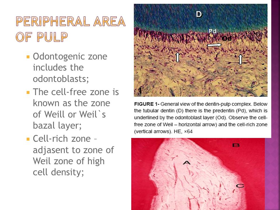Peripheral area of pulp