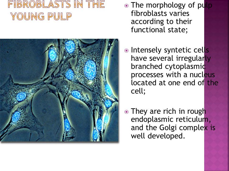 Fibroblasts in the young pulp