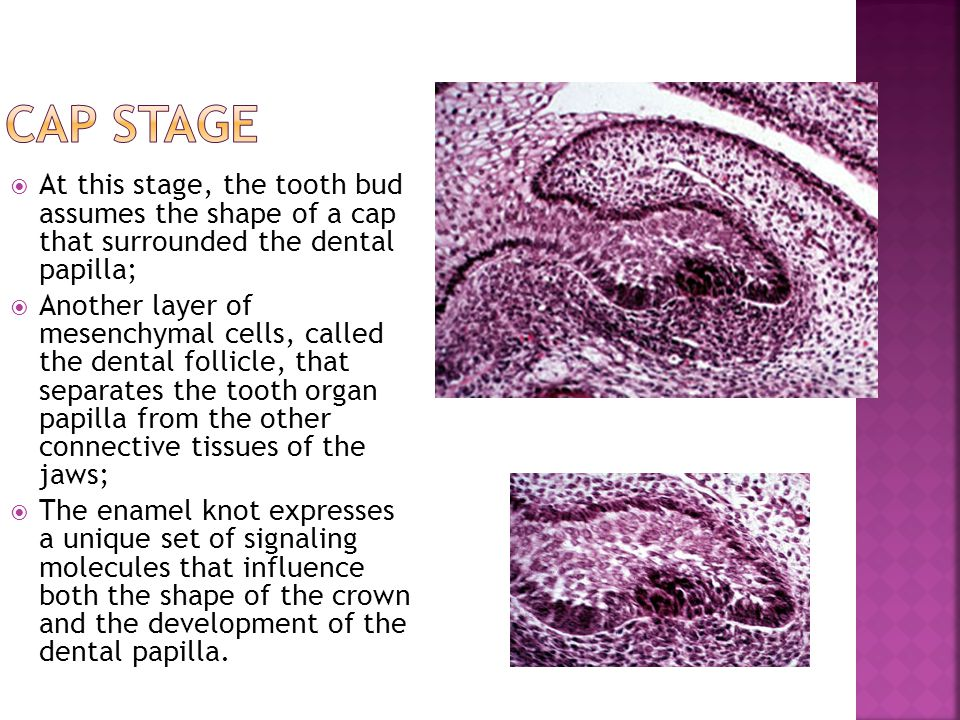Cap stage At this stage, the tooth bud assumes the shape of a cap that surrounded the dental papilla;