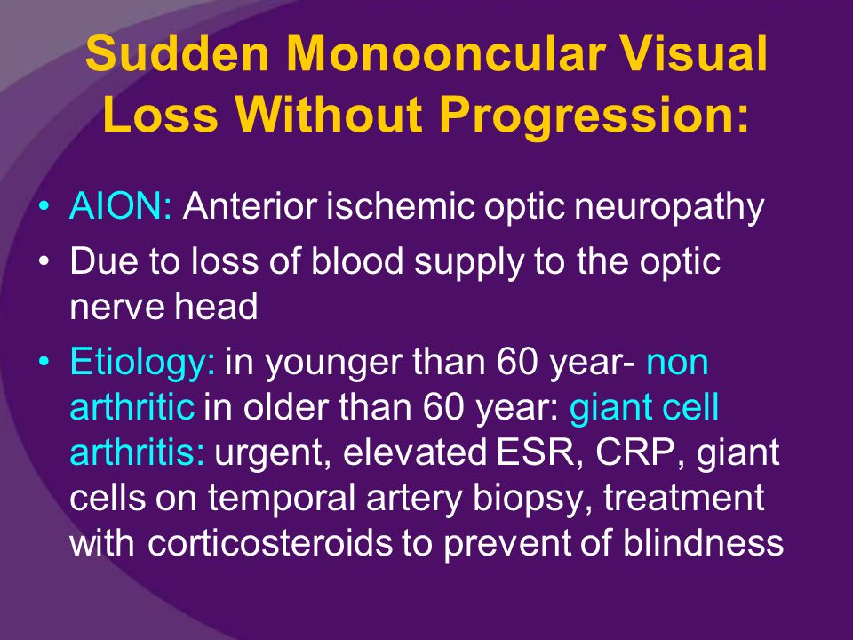 Sudden Monooncular Visual Loss Without Progression: