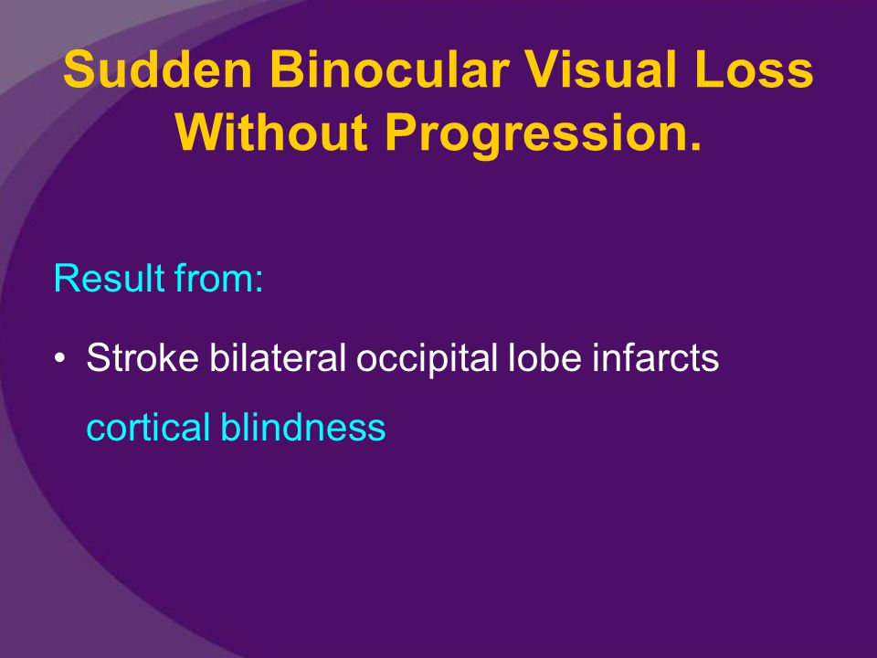 Sudden Binocular Visual Loss Without Progression.