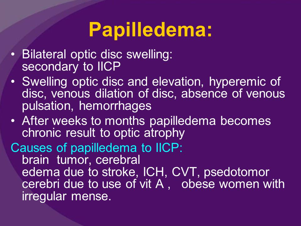 Papilledema: Bilateral optic disc swelling: secondary to IICP