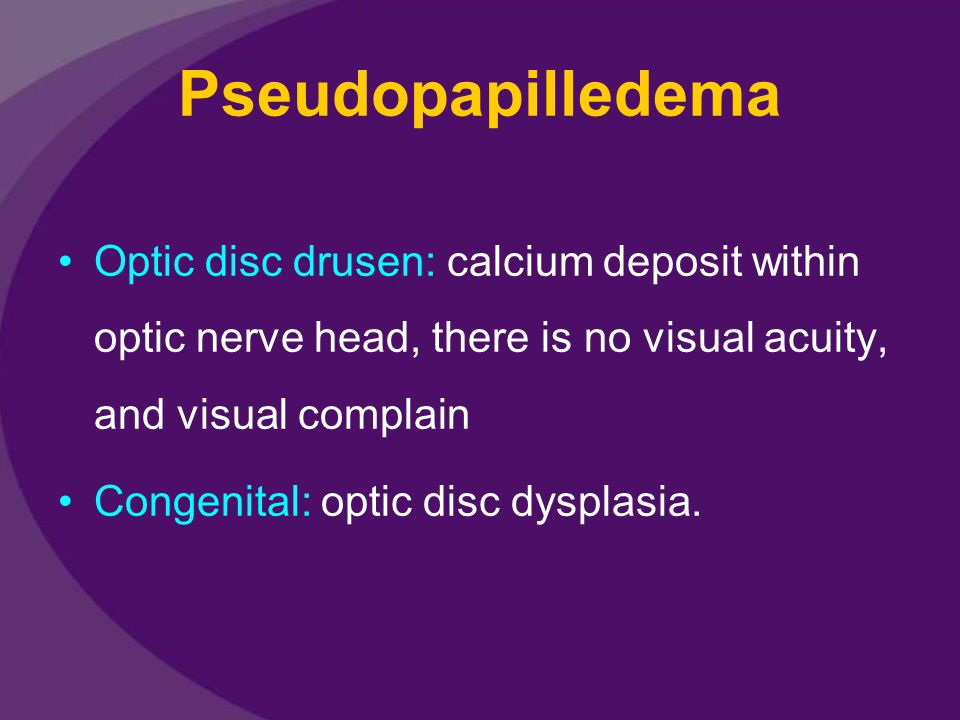 Pseudopapilledema Optic disc drusen: calcium deposit within optic nerve head, there is no visual acuity, and visual complain.