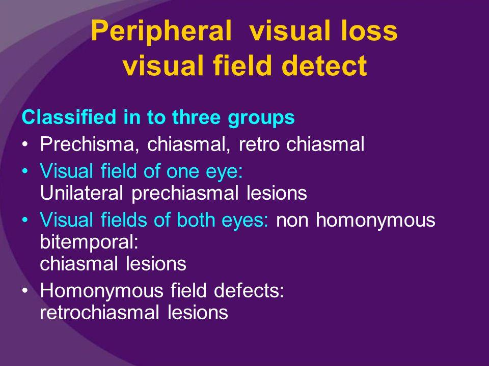 Peripheral visual loss visual field detect